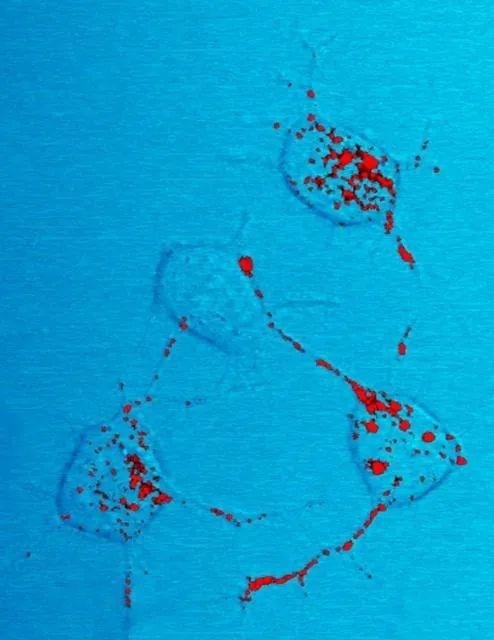 法国实验事故导致一人感染疯牛病病原体死亡